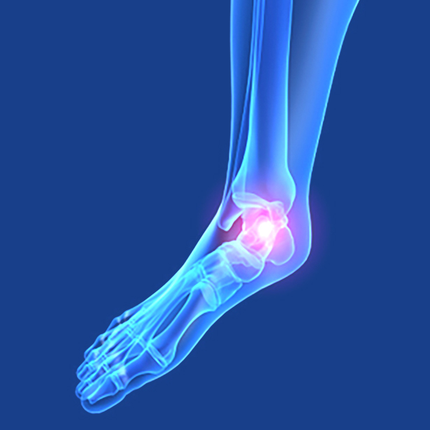 Ankle/Feet Pain Relief